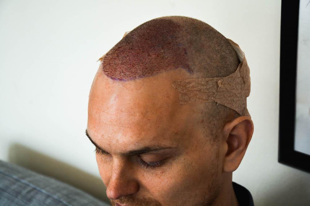 efter hårtransplatationen