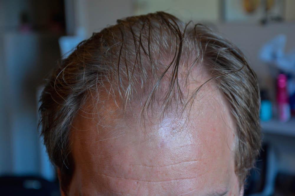 hår forfra