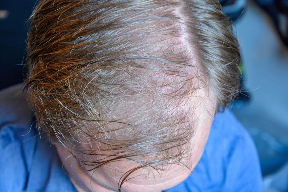 hår ovenfra